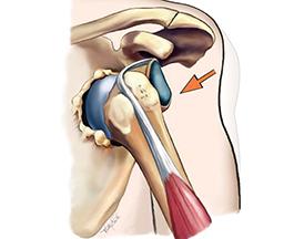muscle-meets-medicine-deltoid-drawing